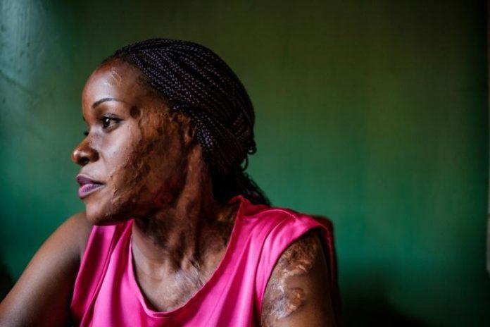 Linette Kirungi, victime d'une attaque à l'acide, photographiée dans son bureau le 12 septembre 2019 à Kampala afp.com - SUMY SADURNI